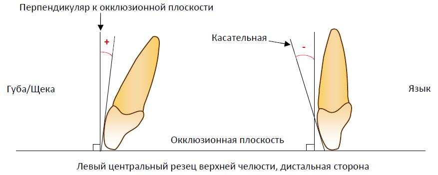 Инклинация коронки зуба